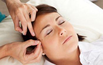 Consulta de acupuntura