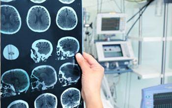 Consulta de neurocirugía
