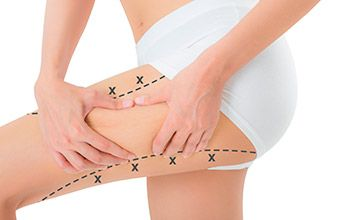 Cirugía estética piernas (lifting crural)