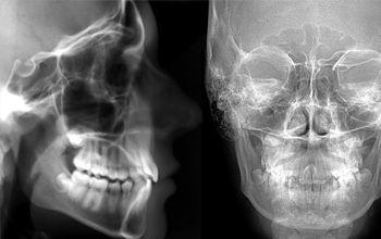 Radiografía cefalográfica lateral