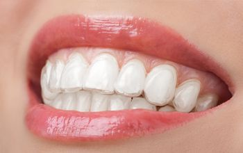 Blanqueamiento dental con férulas (por maxilar)