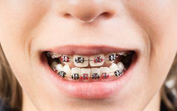 Aparatología ambos maxilares