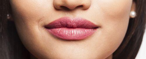 Perfilado de labios hialurónico
