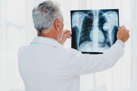 Radografía general (extremidades, tórax, cráneo, cadera, pelvis...)